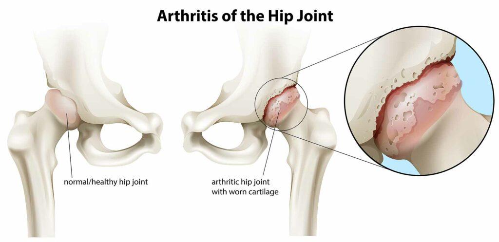 Rheumatoid-arthritis-happens-when-the-body's-immune-system-attacks